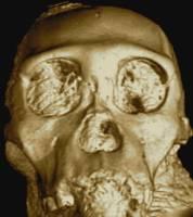 Australopithecus sediba skull