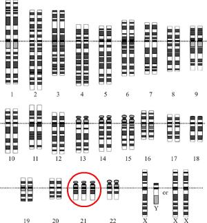 Down's syndrome karyotype