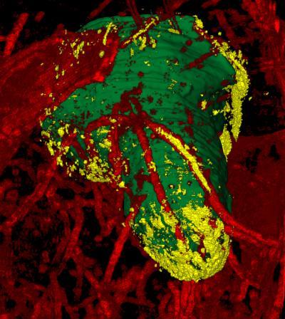 Picture of a glioblastoma
