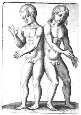 hermaphroditic conjoined twins