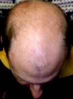 male baldness cure
