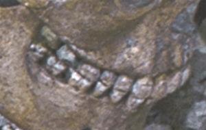 old teeth