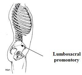 lumbosacral promontory
